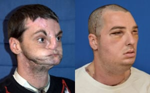 Hillsville face transplant side by side pic March 27 2012