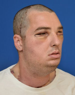 Hillsville face transplant after surgery pic March 27 2012