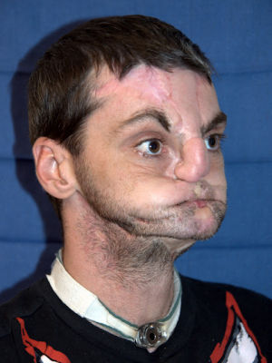 Hillsville face transplant before surgery pic March 27 2012