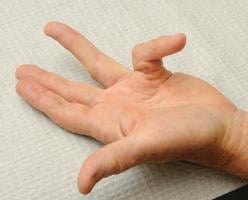 New treatment for Dupuytren's contracture reduces need for surgery