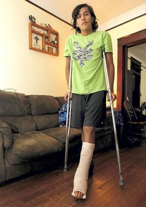 Student breaks leg on school trip