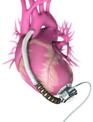 Heartware® Ventricular Assist System