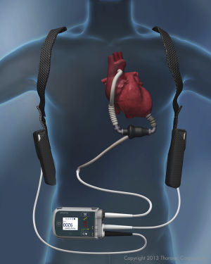 HeartMateII: The HeartMate II was approved to keep patients healthy until transplantation. But the device theoretically could work for at least 17 years, according to the head of the company that makes it. - Thoratec | Courtesy illustration