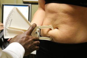 "<p>A Heritage Park Fitness ""Biggest Loser"" contestant gets a pinch test to determine body fat on the first night of the competition. Jodi Perry 