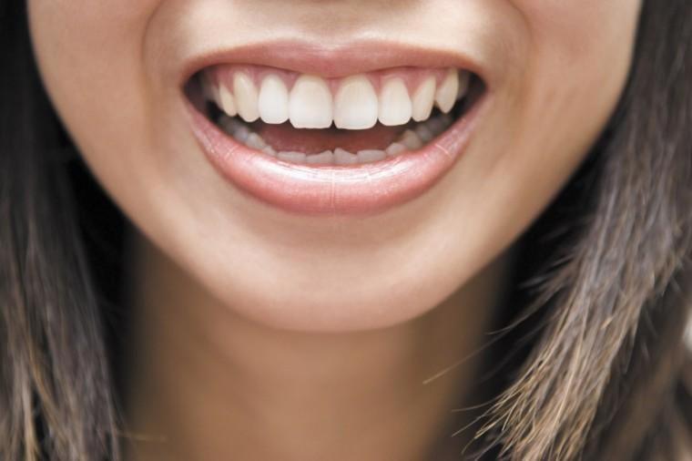 Aesthetica-mouth.jpg
