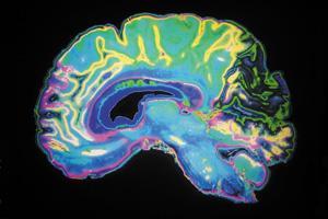 Retirement Lifestyle: Alzheimer's Pre-Testing