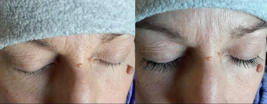 A Step Toward Looking Human Again Eyelash Extensions For Cancer