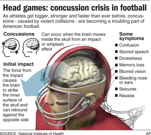 a history and effects of concussions in football and hockey The concussion ir of 158/1000 exposures in our sample of youth ice hockey players aged 12 to 18 years was comparable to rates reported for other youth sports 8, 10, 13 – 15 in fact, in a recent study of youth football players, researchers reported a total concussion ir of 176/1000 exposures, 10 which is similar to the rate reported in the.