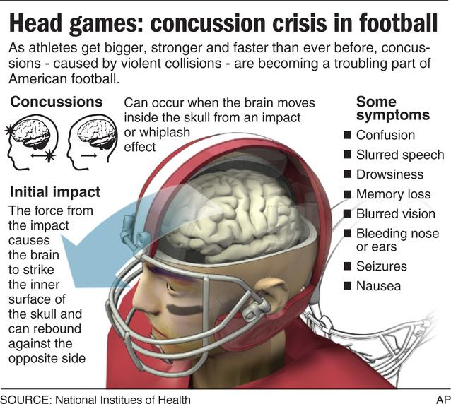 a history and effects of concussions in football and hockey Anatomy of the concussion: concussion rate in football of 42 per 1,000 athlete a history of three or more previous concussions were more than three times.