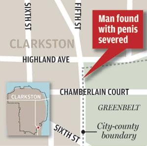 Naked man found in street minus penis