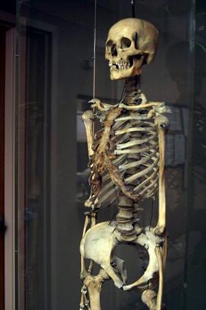 Ottumwa hospital skeleton identified as that of homeless man