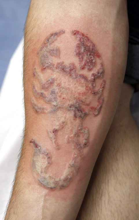 Tattoo removal richmond times dispatch entertainment for Tattoo bandage removal