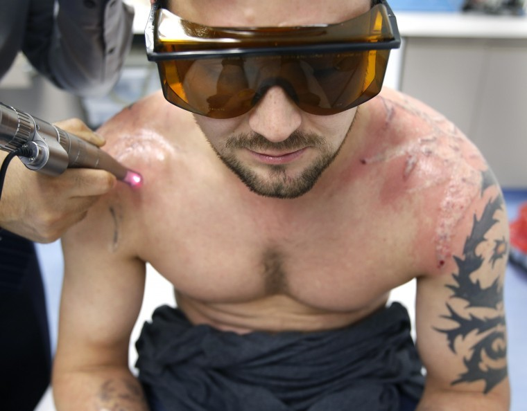 Think before you ink tattoo removal costly long for How painful is tattoo removal