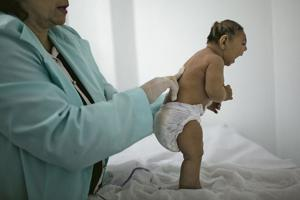 CDC confirms Zika virus causes microcephaly, other birth defects