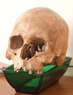 Police: Man finds skull in front yard of California home