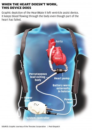 Heart Machine Keeps Man Ticking Lifestyles