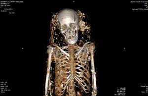 Mummies get a CT scan at Wash U. Med Center