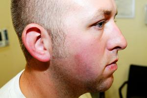 Photos: Darren Wilson medical exam