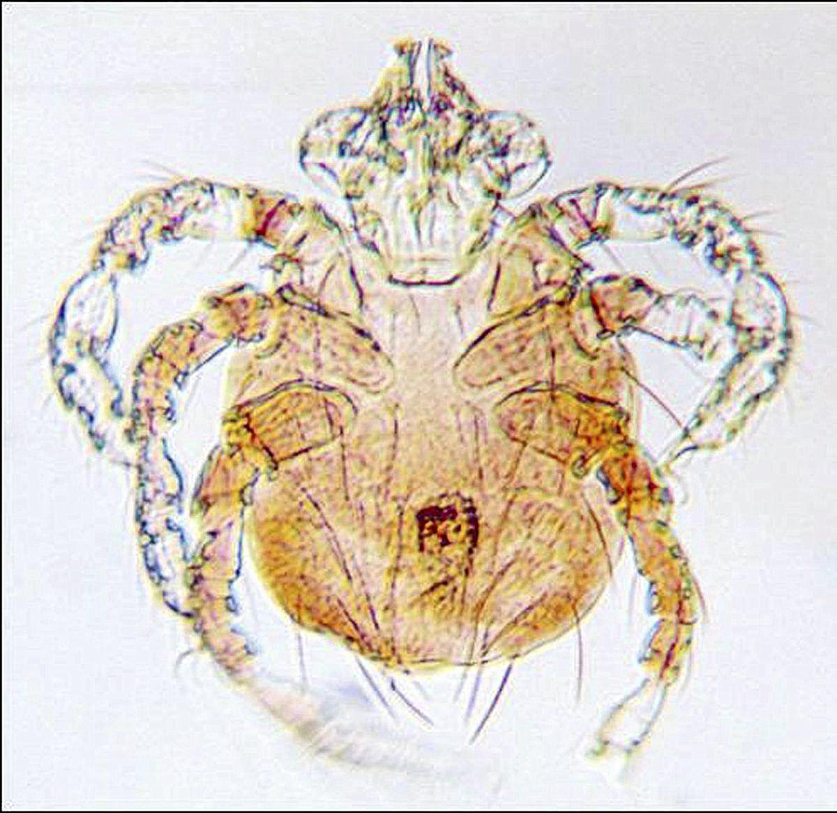 Spider mites bites
