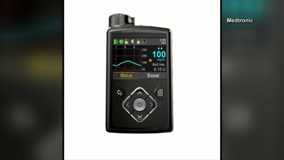 Medtronic recalls certain insulin pumps due to potential incorrect dosing