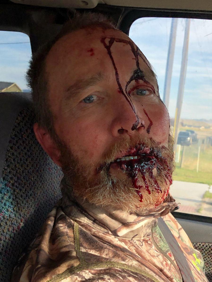 hunters survive bear attack