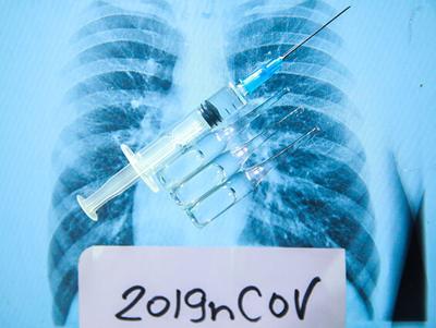 coronavirus xray