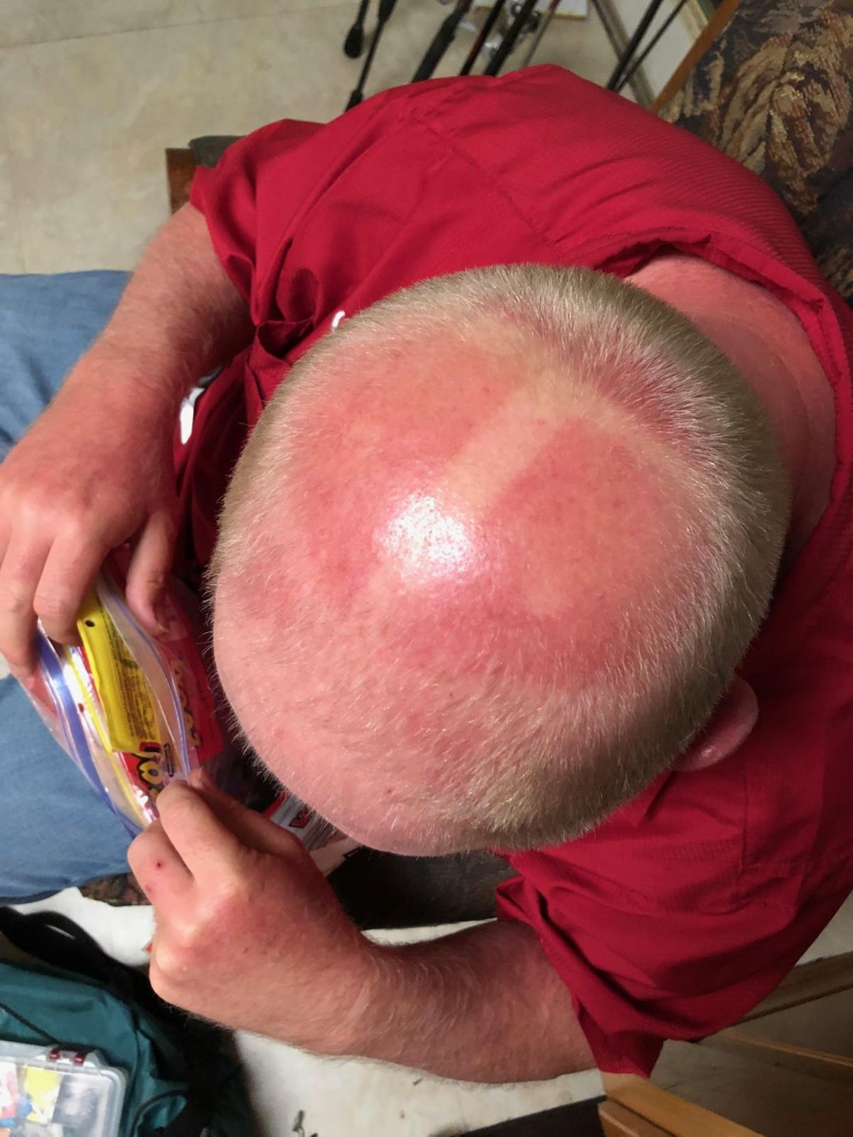 Bald Tan Line