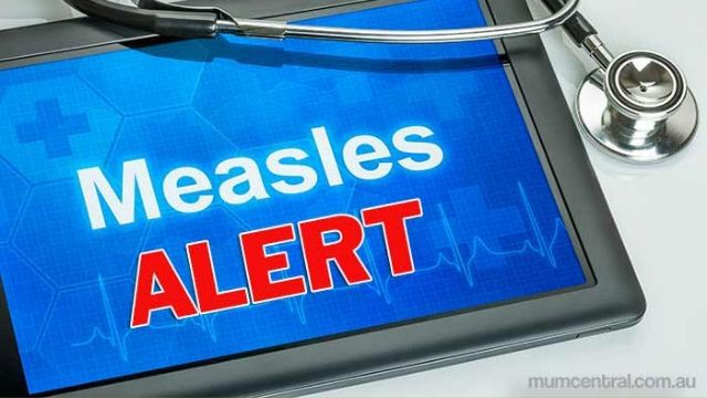 Health officials warn of possible measles exposure