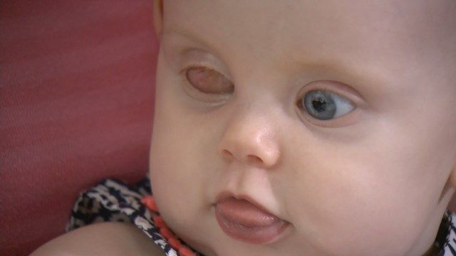 'Red eye' in baby photos alerts parents to tumor