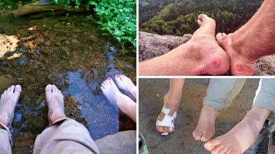 Hiking blisters