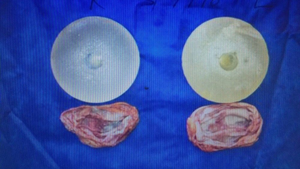 Removed implants and capsules