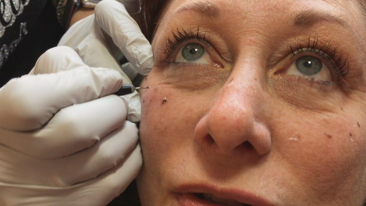 Beauty trend alert: Tattooed freckles | Archives | azfamily.com