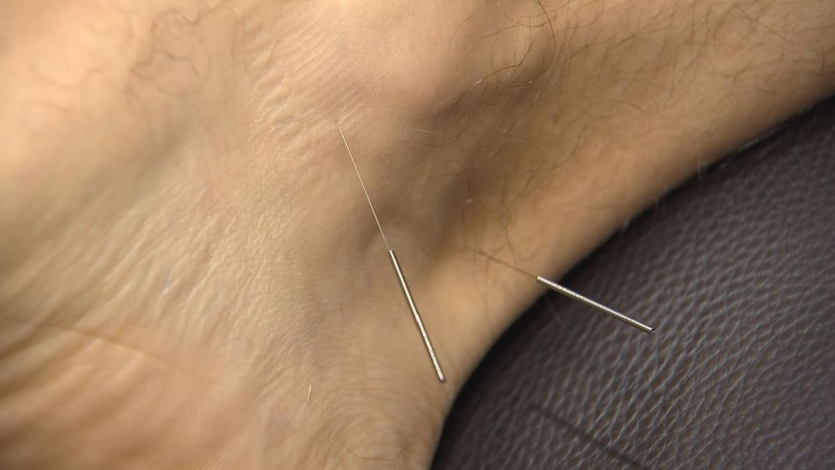 More choosing acupuncture over pills for pain management