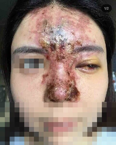 Example of skin death