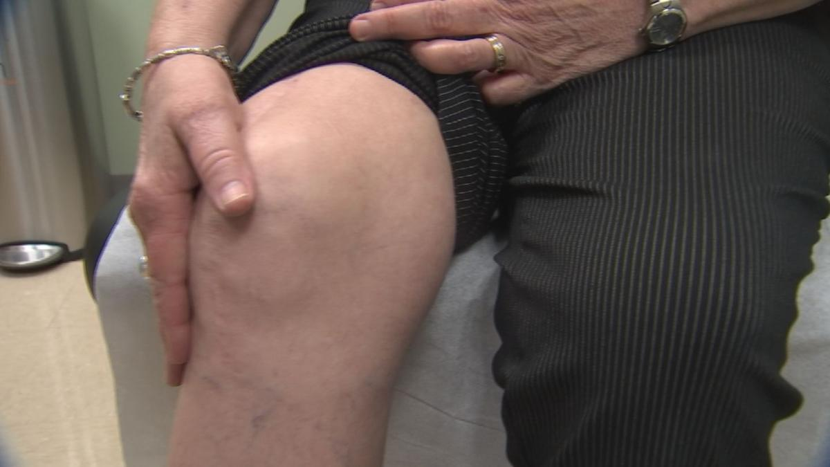 New study shows many patients wait too long before seeking treatment for orthopedic pain