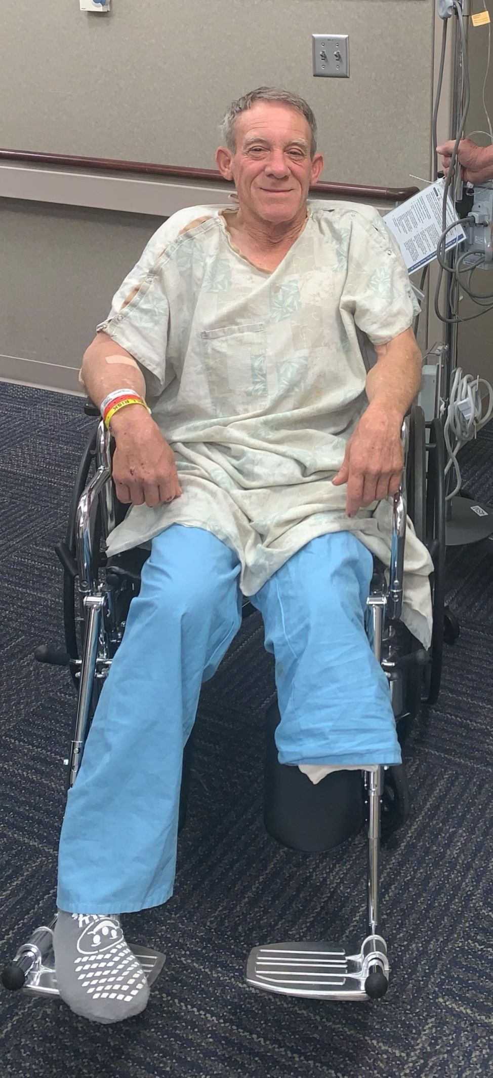 Farmer amputates his leg with a pocket knife to save his own life