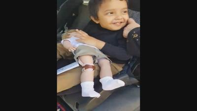 Valley boy comforted by doll with prosthetic leg