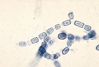 Valley fever fungus