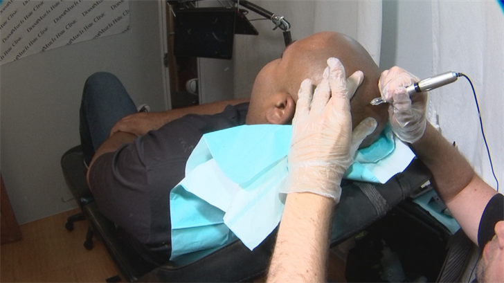 Fighting hair loss? Some Valley men turning to scalp tattoos