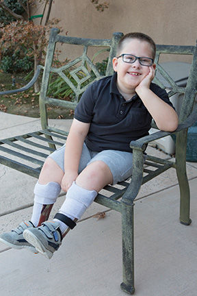 Real Success Stories: Living and thriving with spina bifida