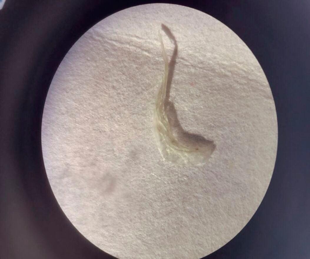 Microplastic fiber