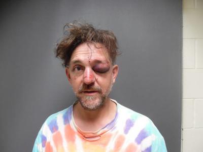Police: Man Trespasses, Fights And Bites At Jay Peak