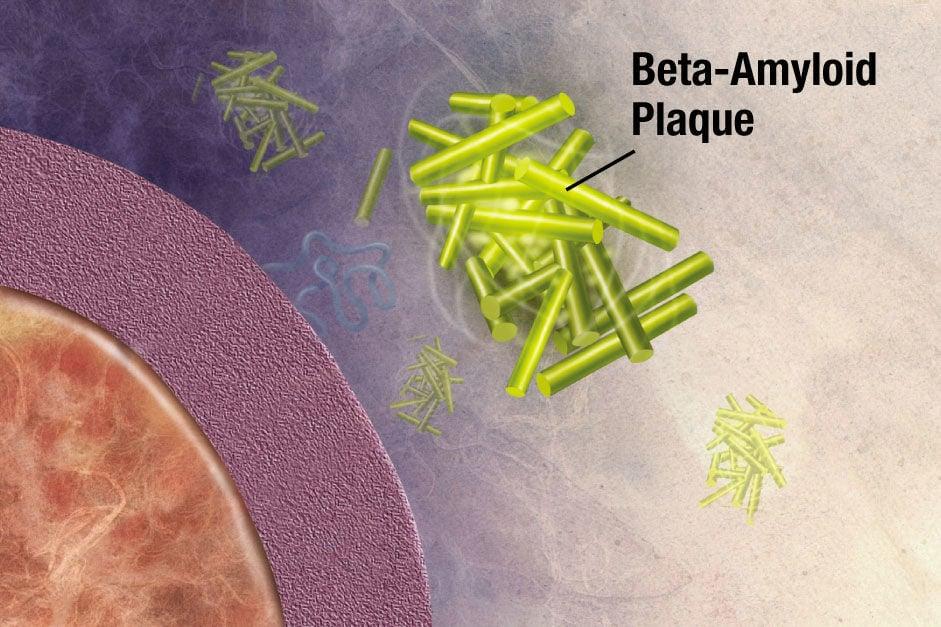 Beta-Amyloid Plaque