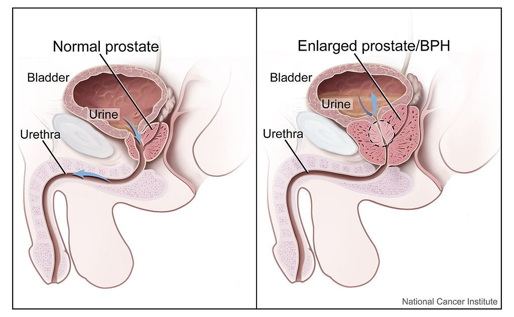 Sexual health post prostate cancer radiation
