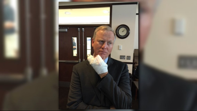 AG candidate Brauchler hit by car while riding bike