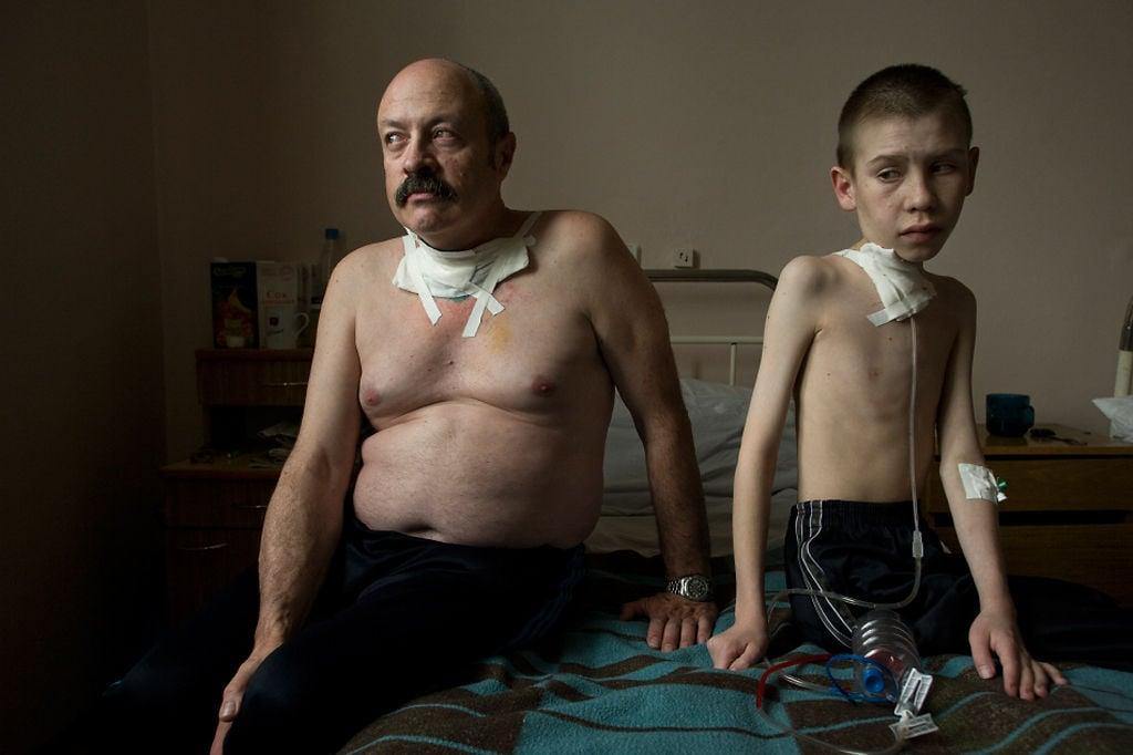 Oleg Shapiro and Dima Bogdanovich receive care at a thyroid hospital