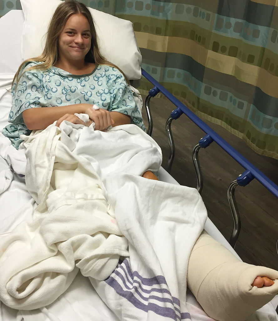 Former MU tennis player Turner Yates recovers from ankle surgery