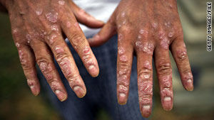 vietnam war agent orange hands