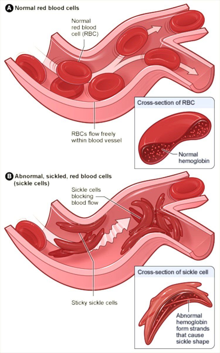 Sickle Cell Disease Chart