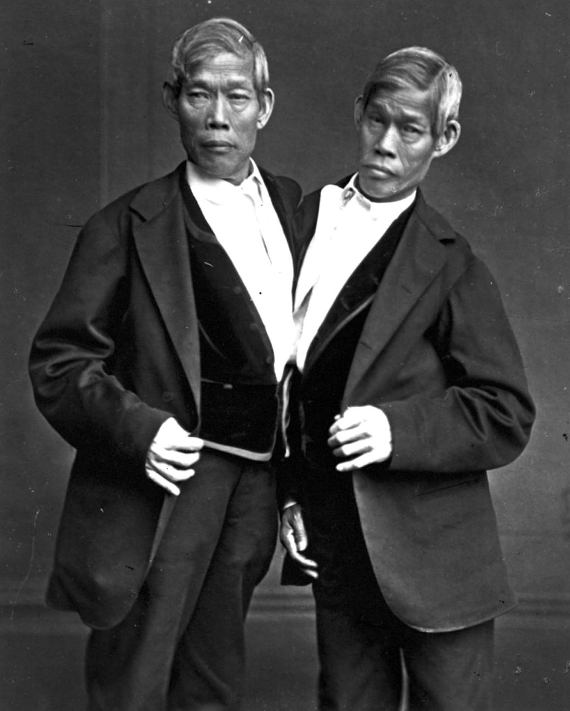Dating site for siamese twins